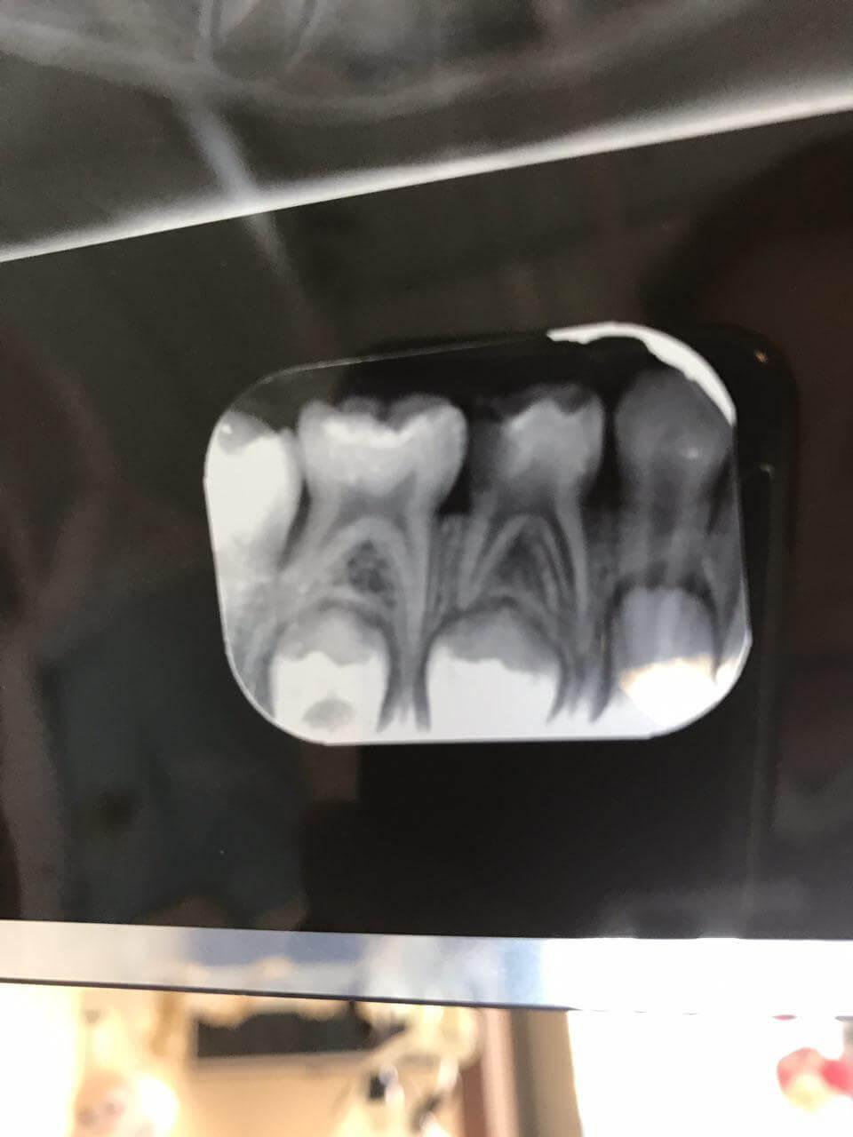 پالپكتومي(درمان ريشه ) دندان شيری و روكش جهت حفظ دندان شيری