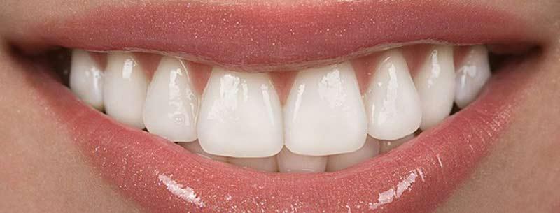 لمینیت دندان مزایا و معایب