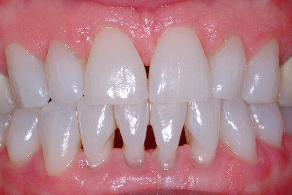 کلینیک دندانپزشکی دانا مراقبت های پس از جراحی لثه