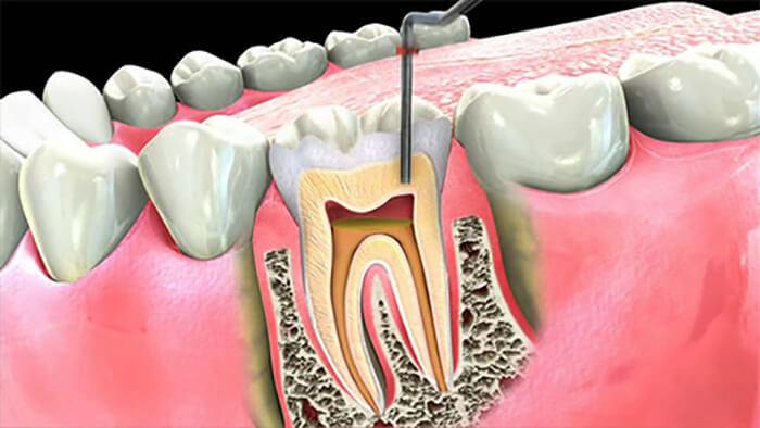 چرا دندان به درمان مجدد ريشه نياز پيدا ميكند؟