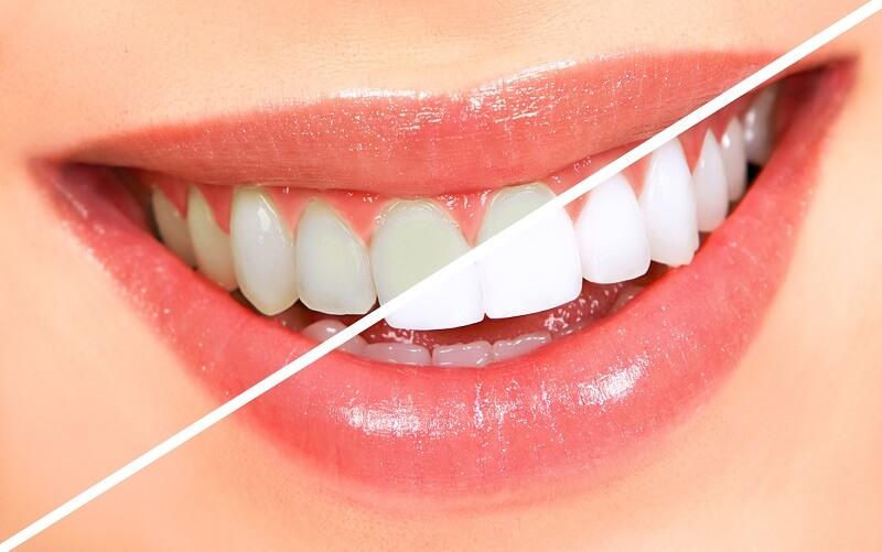 سفید کردن دندان بلیچینگ