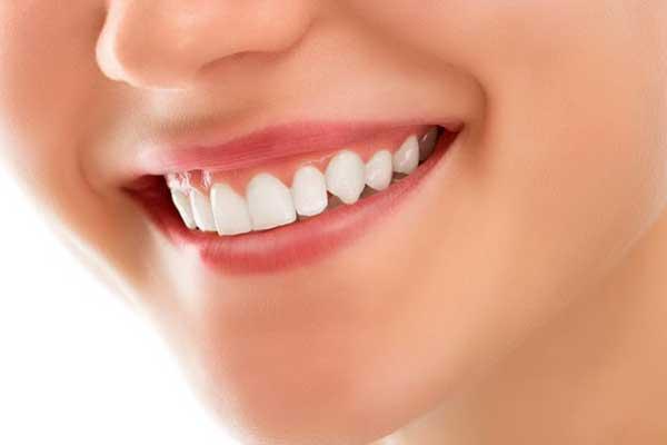 اصلاح طرح لبخند لثهای