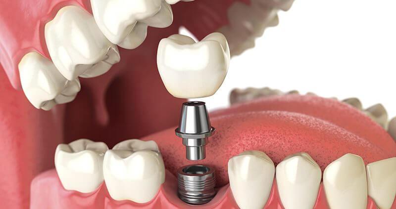 ایمپلنت دندانی ممکن است چه عوارضی داشته باشد؟