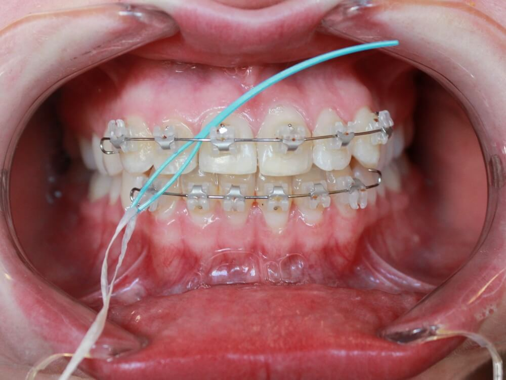کشیدن نخ دندان در دندان ارتودنسی شده