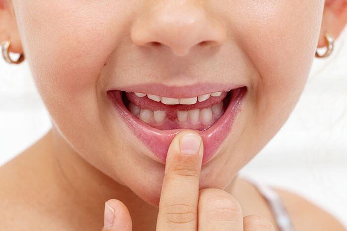 کشیدن دندان لق کودک در خانه
