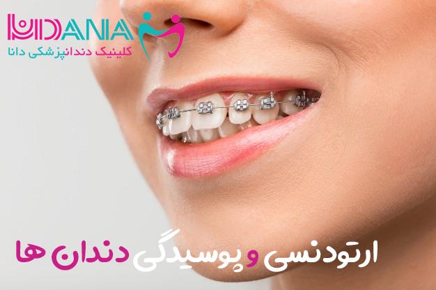 ارتودنسی و پوسیدگی دندان ها