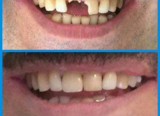 کلینیک دندانپزشکی دانا نحوه ی درمان دندان های ضربه خورده دندان های ضربه خورده