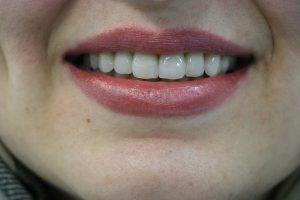 عوامل دخیل در طراحی لبخند